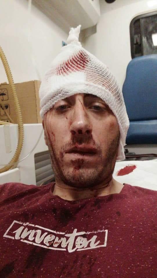 Vlado Kovačević, napadnuti novinar
